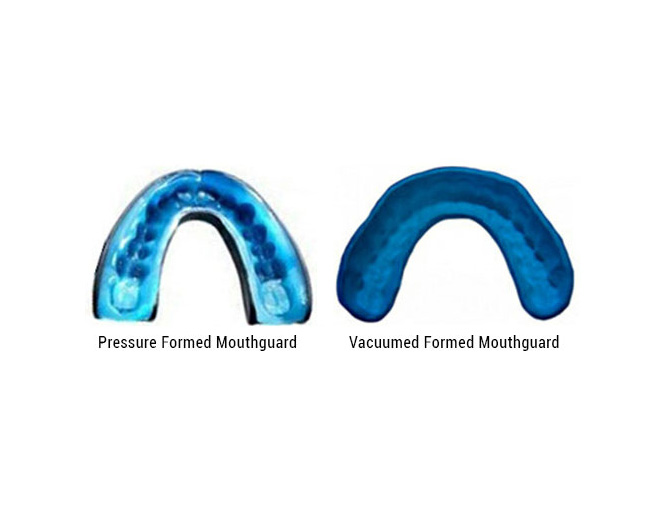 Pressure Formed vs. Vacuumed Formed Mouthguards